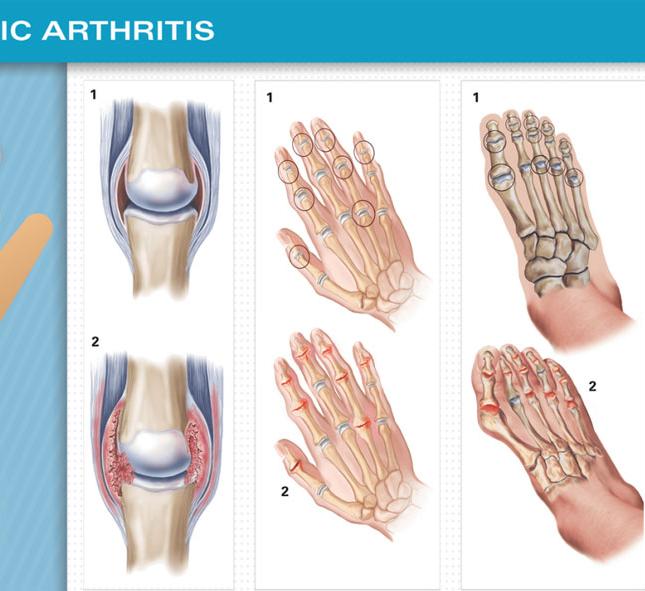 Боли в мышцах при псориазе могут быть причиной появления псориатического артрита