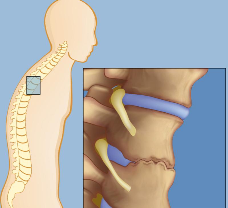 Упражнения при спондилезе грудного отдела позвоночника