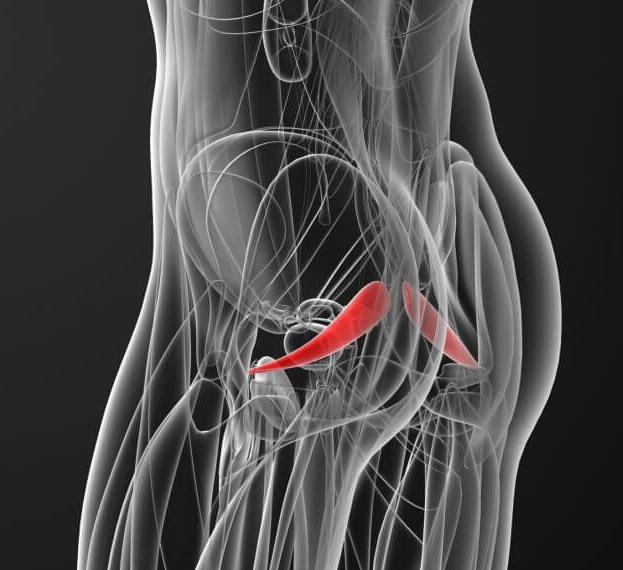 Что такое синдром грушевидной мышцы