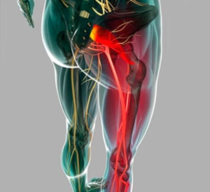 Лечение Плечевого Сустава Сильная Боль В Плече