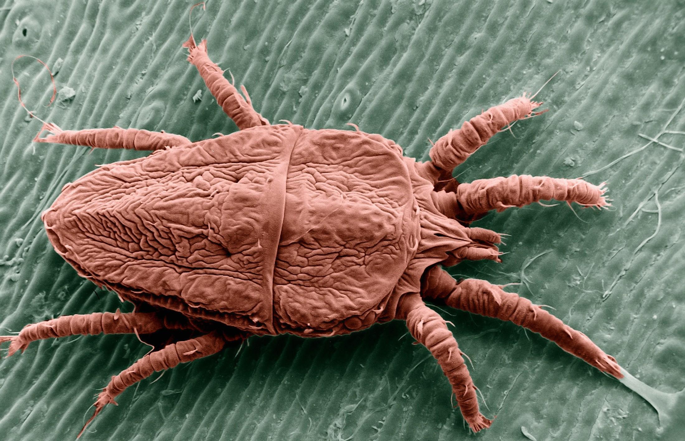 чем опасны паразиты в организме