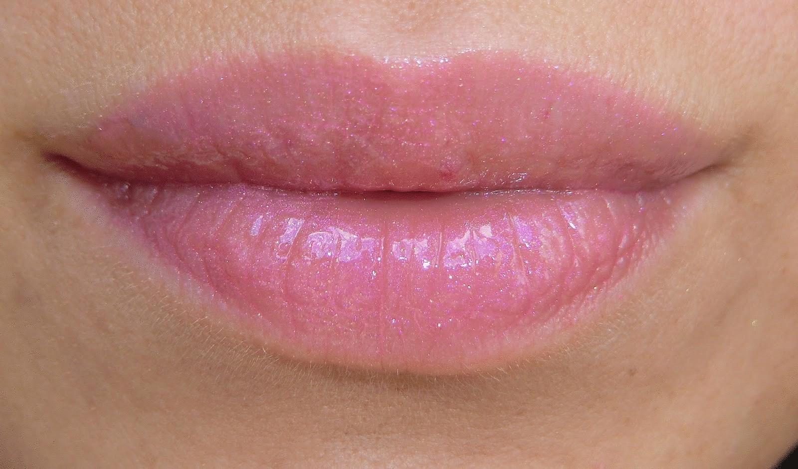 аллергия на помаду признаки