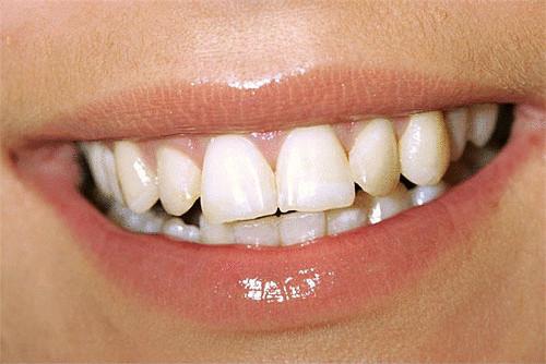 лайфхак отбеливание зубов