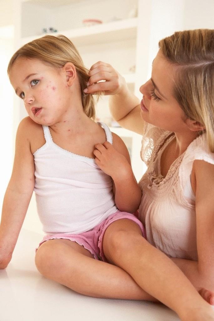 Народные средства от ветрянки у детей и взрослых