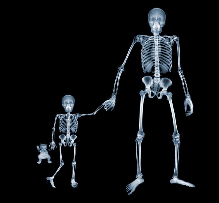 О вреде рентгена для детей и не только...