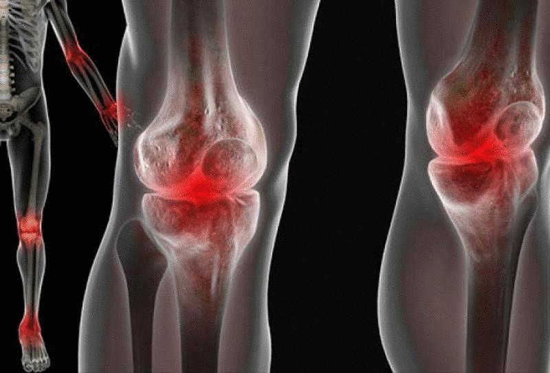 Борьба с болью в суставах при помощи натуральных средств
