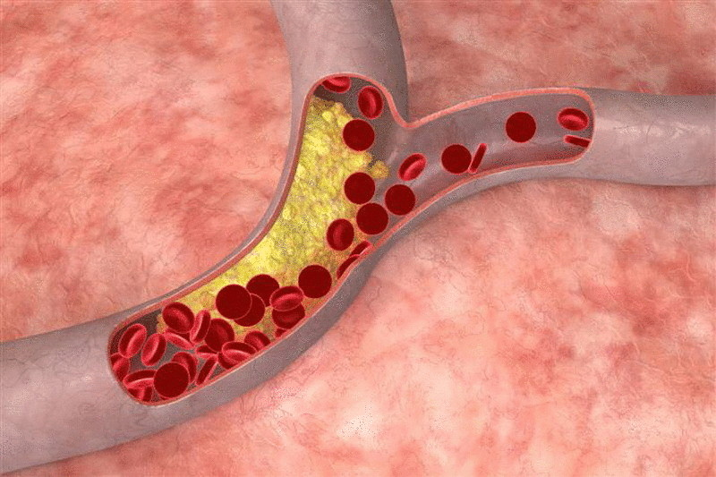 снизить уровень холестерина диетой