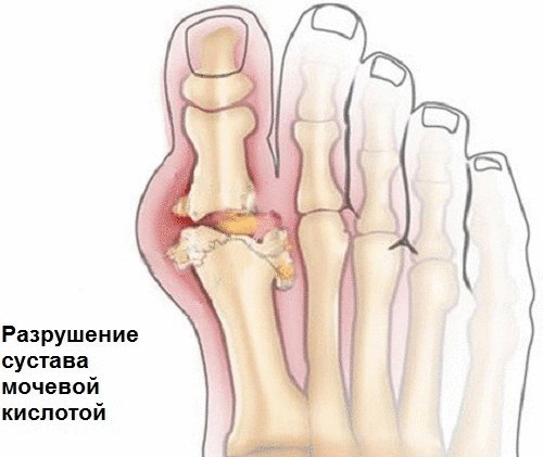 Мочевина в суставах причины народное применение в лечении колбой/черемша/ суставов