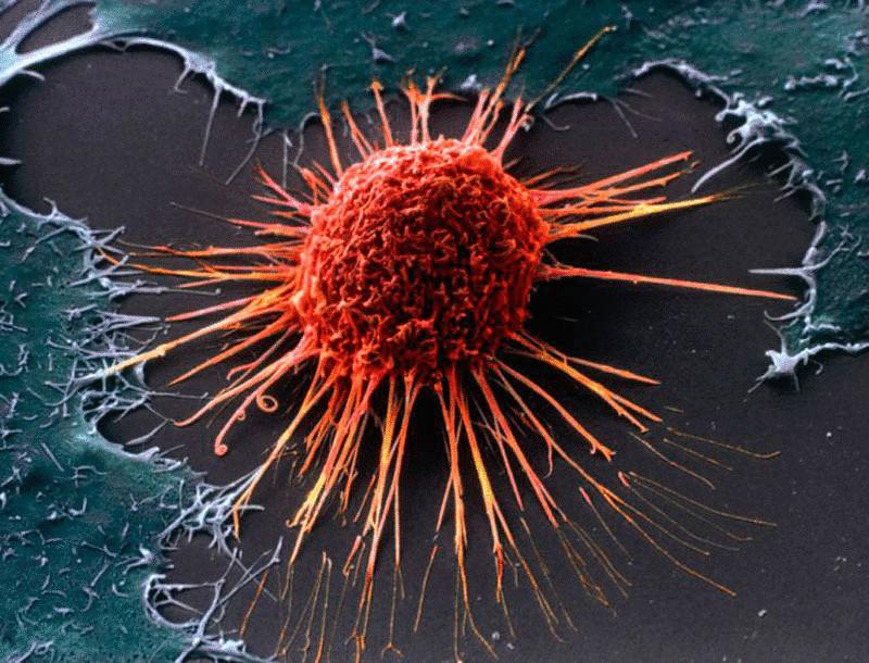 12 мифов официальной онкологии