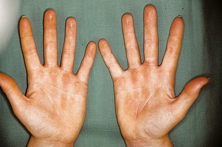 аллергия на никель симптомы