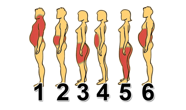 Ожирение в области живота
