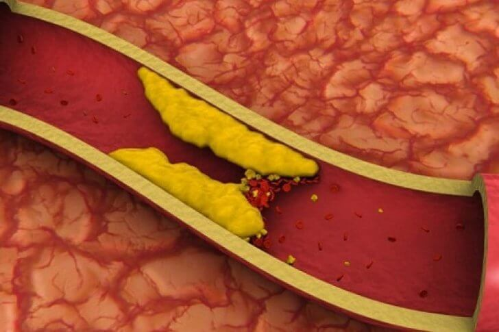 высокий холестерин что делать лекарства