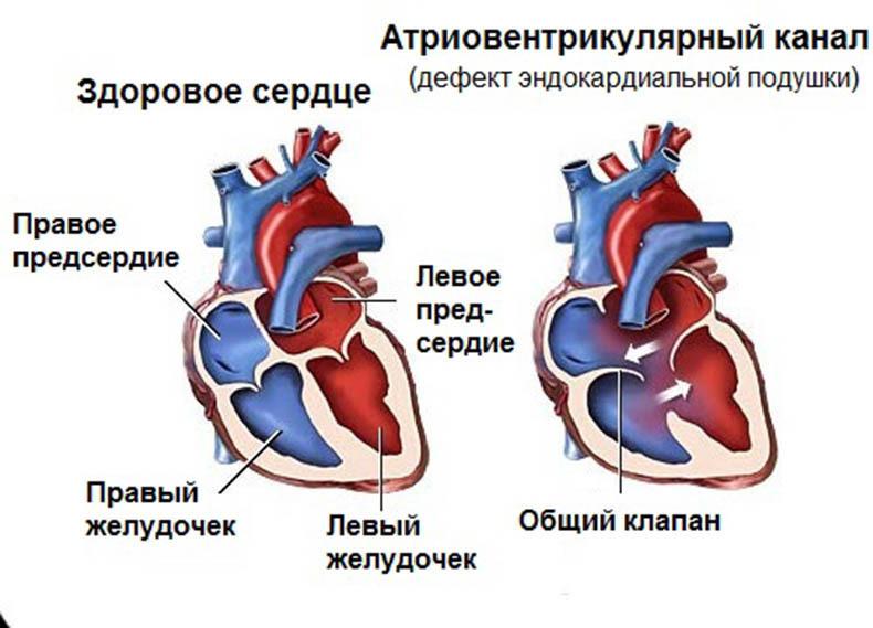 Шумы в сердце: что нужно знать?