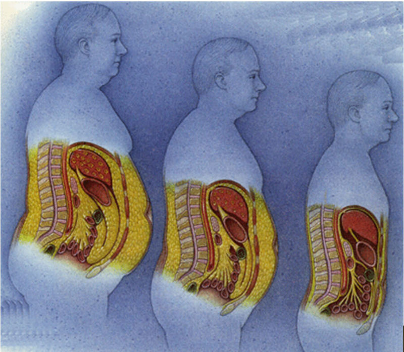 жир внутри живота