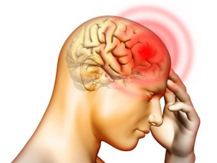 Если бы я знал об этом раньше! Нехватка всего 4 продуктов провоцирует головную боль