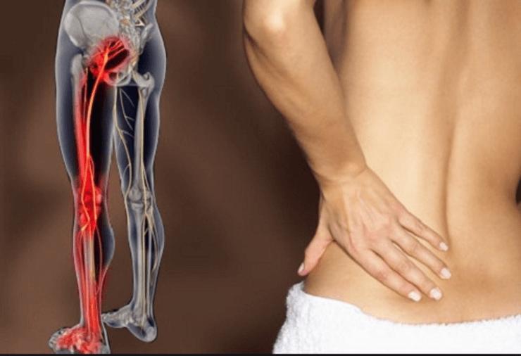 Ишиас: 8 натуральных средств, которые помогут избавиться от боли