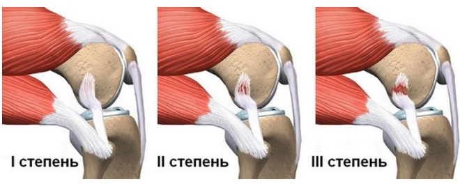 Лечение травм коленного сустава гомеопатией лууле виилма болезни позвоночника и суставов читать онлайн