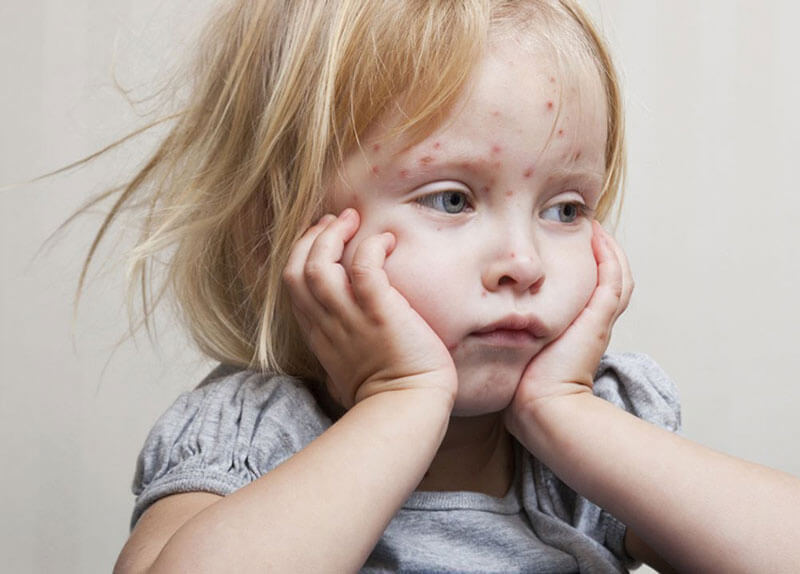 Почему болеют <a  data-cke-saved-href='http://econet.ru/articles/tagged?tag=%D0%B4%D0%B5%D1%82%D0%B8' href='http://econet.ru/articles/tagged?tag=%D0%B4%D0%B5%D1%82%D0%B8'>дети</a>
