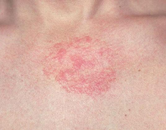 5 спасительных домашних средств при дерматите