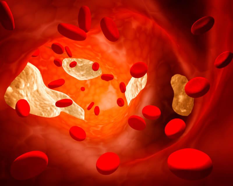 мало холестерина в крови симптомы