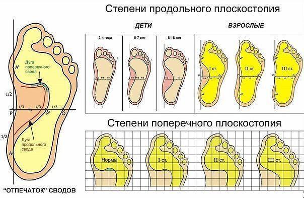Как исправить плоскостопие