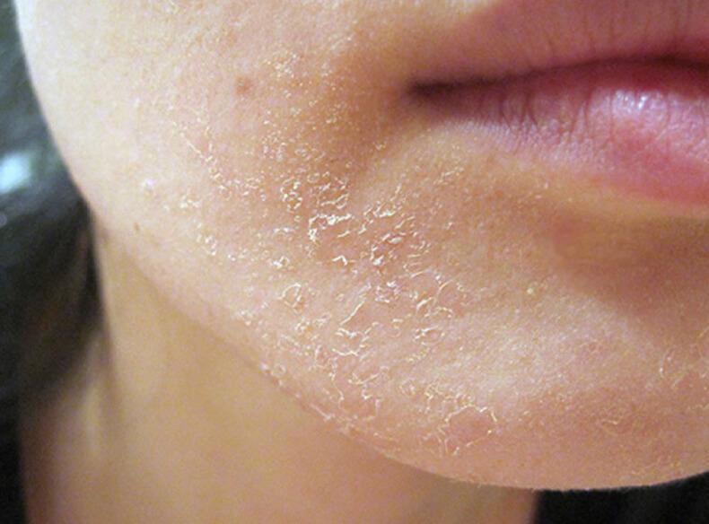 Шелушение кожи на лице у мужчины причины