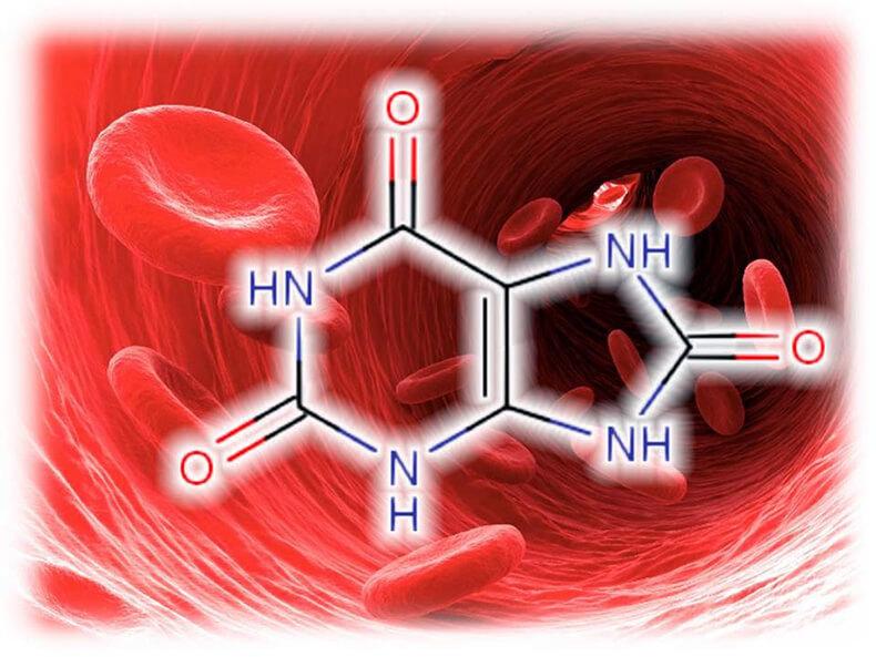 повышена мочевая кислота холестерин