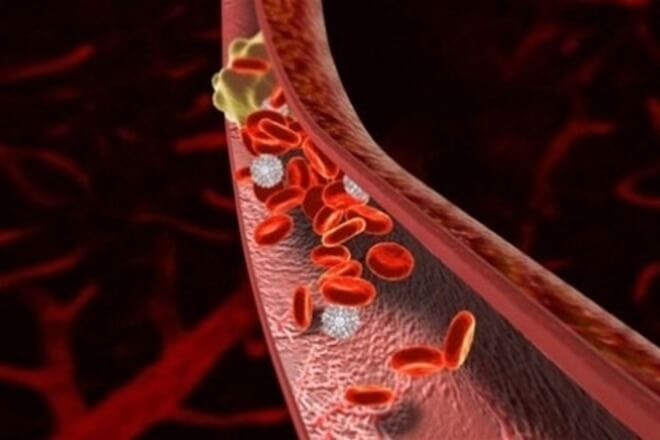 Образование лечение, причины, профилактика тромбов