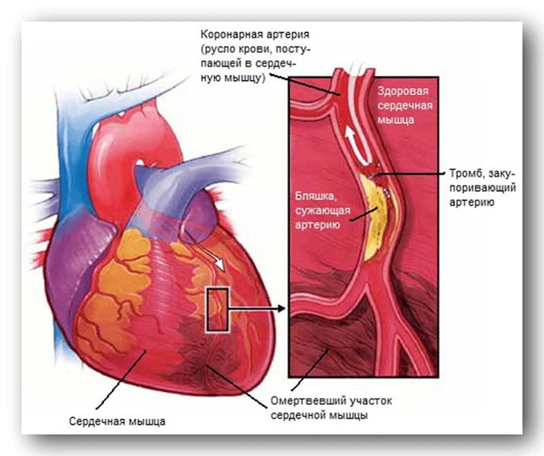 от чего образуется холестерин