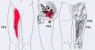 Карта точек боли в теле и точек напряжения мышц (триггеры)