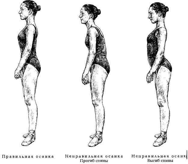 Упражнение для дегенеративной осанки