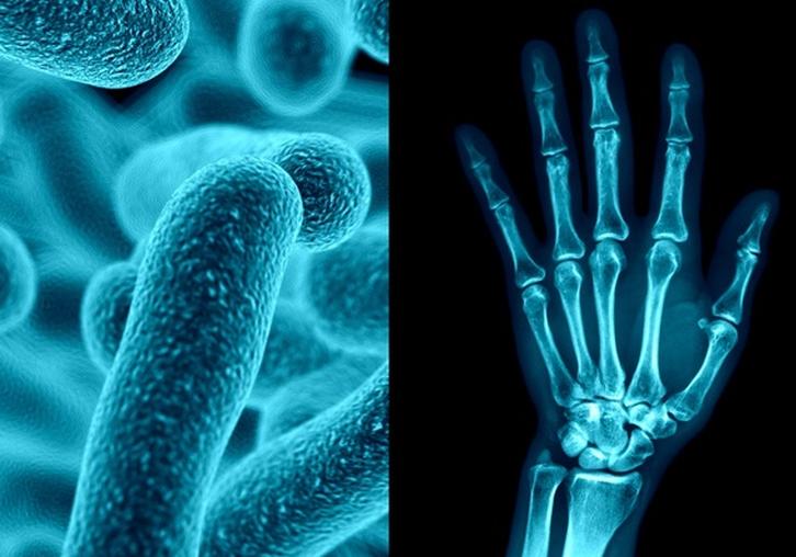 артрит вызванный кишечной палочкой