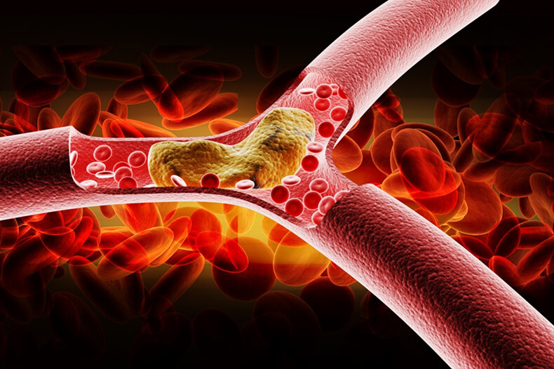 Признаки высокого уровня холестерина в крови — не пропустите!