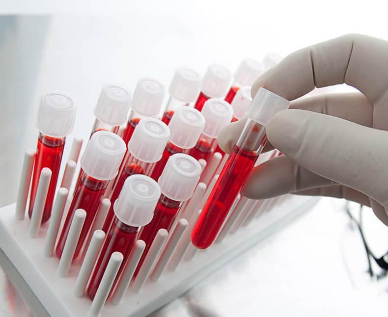 Анализы крови на сахар: какие сдавать и интерпретировать результаты
