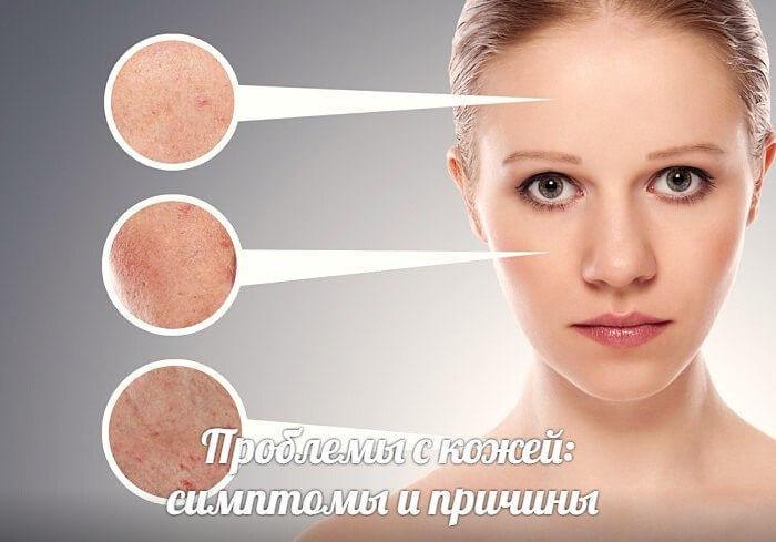 Проблемы с кожей: симптомы и причины