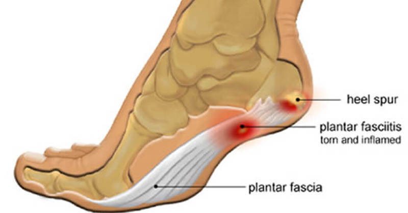 Плантарный фасциит: Узнайте как облегчить боль при помощи простого