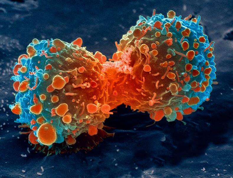 Почему одни раковые клетки умирают, а другие выздоравливают