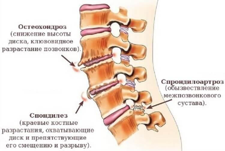 Причина боли в позвоночнике грудного отдела позвоночника