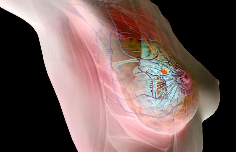 Как не умереть от рака молочной железы