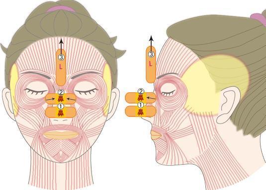 Моделирование лица с помощью пластырей
