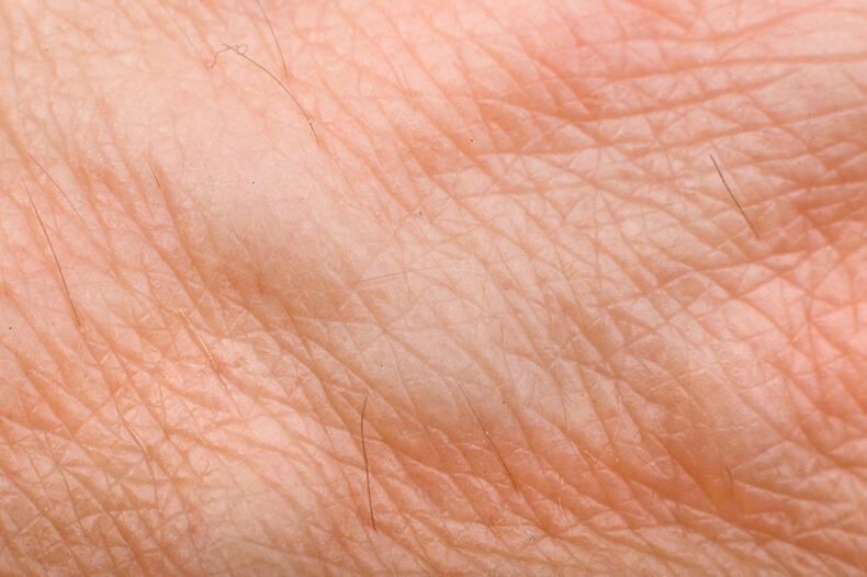 Зоны Захарьина-Геда: проекции внутренних органов на коже