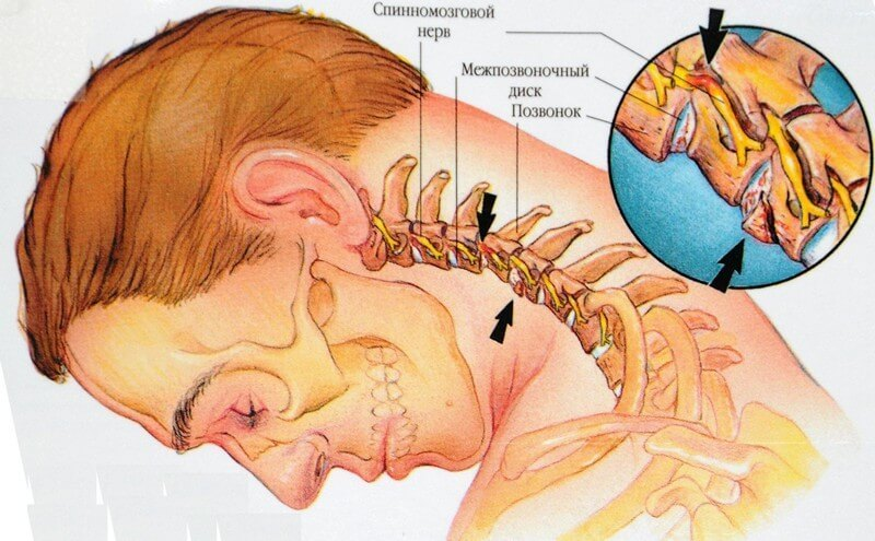 Это важно знать! Основные симптомы шейного остеохондроза