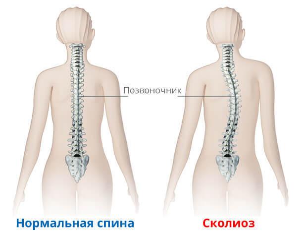 Что нужно лечить про проблемах со спиной