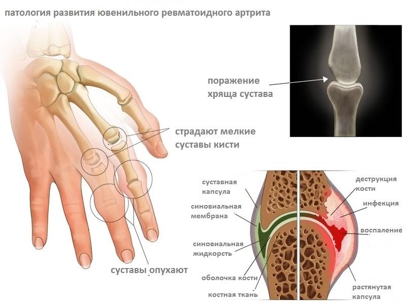 ВНИМАНИЕ! 7 ранних признаков артрита