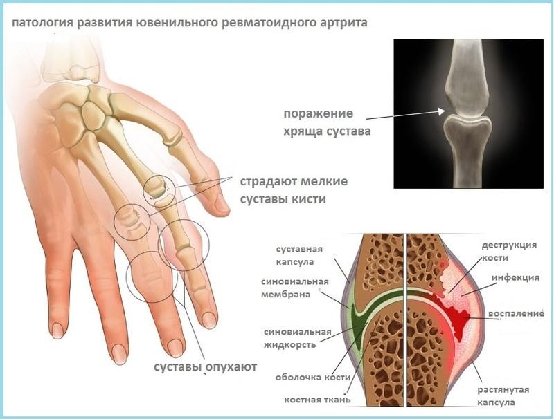 Заболевание суставов воспаление эндопротезирование плечевого сустава видео