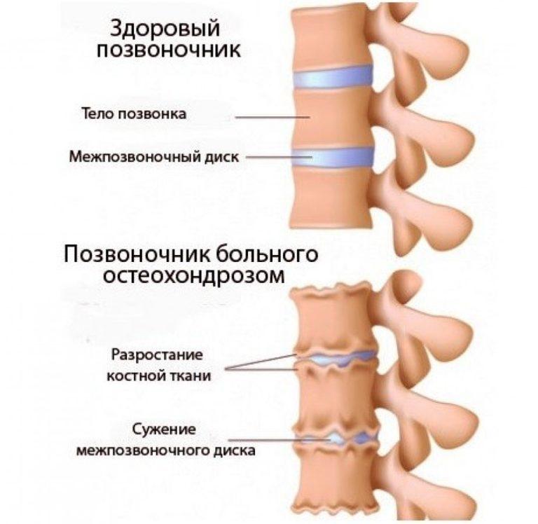 Остеохондроз и хруст суставов белая глина для коленного сустава