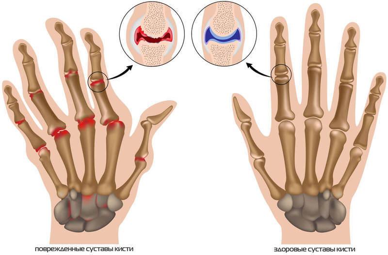 Чем лечить суставы пальцев руками мастер класс магнито-резонансная томография мрт коленного сустава стоимость цена в гривнах