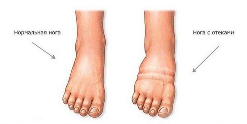 Отеки ног: 6 рецептов народной медицины