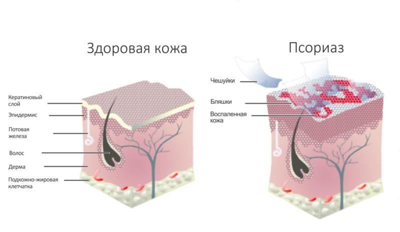 6 средств для лечения псориаза