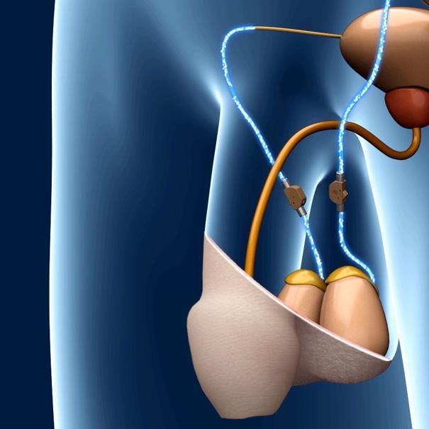 Доктор Хамер: Рак яичек — связь между стрессом и органом